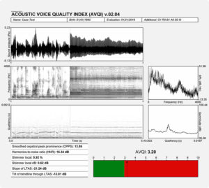 Phonanium Acoustic Voice Quality Index